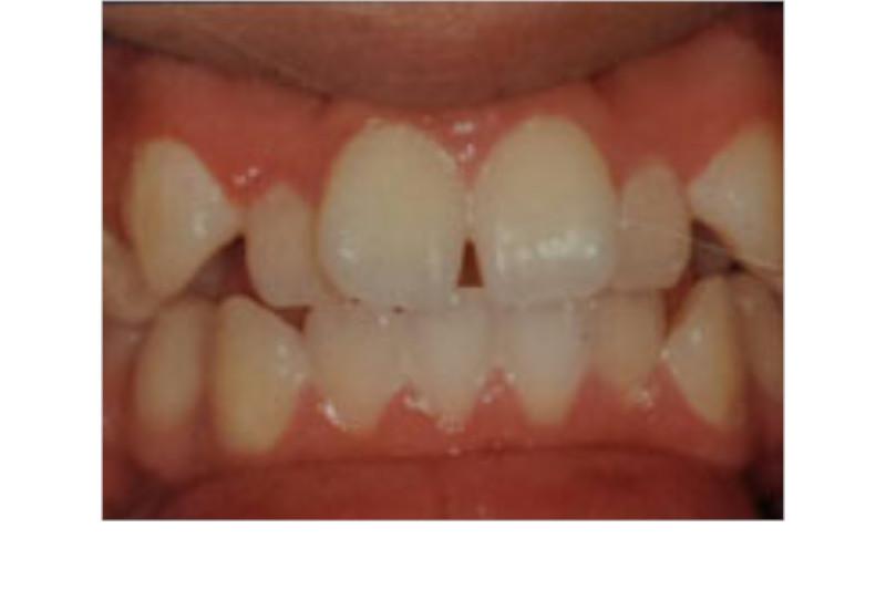 Diamond Bar Dentist