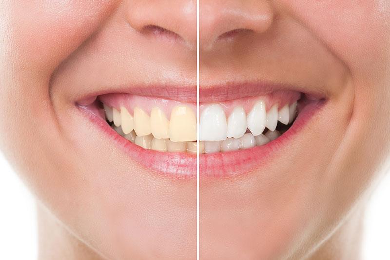 Teeth Whitening - Dr. Evelyn Catuira, Diamond Bar Dentist